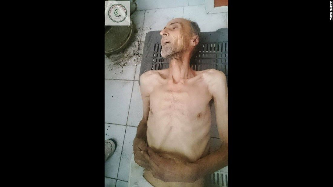 One activist in the Syrian town of Madaya posted this image on social media of Abdel Karim Jawad, 60, who had died on January 2, 2016 due to starvation and lack of access to medication. CNN cannot independently verify the image or information.