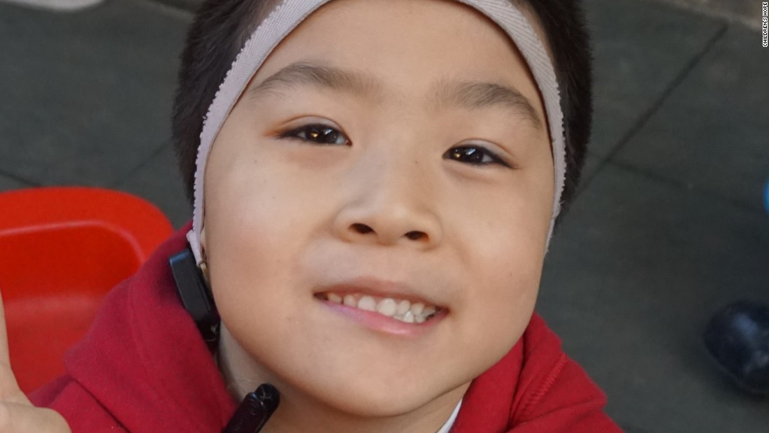 "Born in 2009, Ke Yuan has been in care since March, 2015. He also suffers from aural atresia and is unable to hear. Children's Hope says he's a thoughtful boy who helps take care of the younger children. ""Although he is shy when meeting strangers, he will be willing to talk once he gets familiar with them. Now, taking the initiative to learn to speak more words, Yuan has made huge progress."""