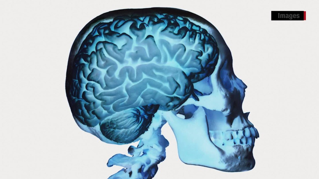Researchers identify CTE biomarker that may lead to diagnosis while alive