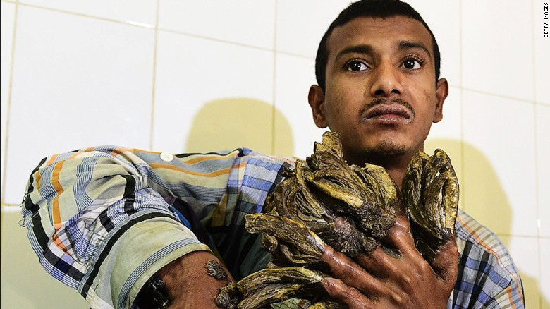 Surgery hope for Bangladesh's 'tree man'