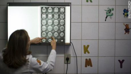 Dr. Angela Rocha shows brain scans of a baby born with microcephaly at the Oswaldo Cruz Hospital in Recife on Thursday, January 28.