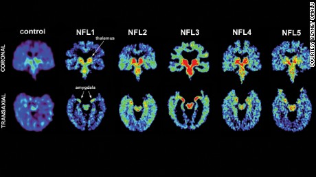 Living brain scans of five former NFL players, including Fred McNeill.