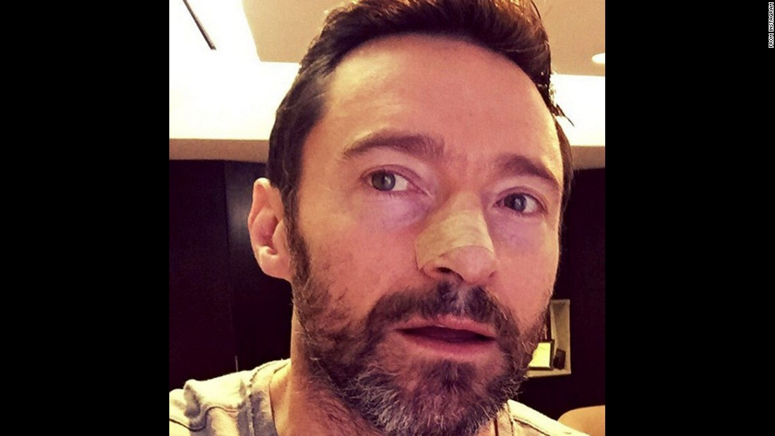"""An example of what happens when you don't wear sunscreen,"" <a href=""https://www.instagram.com/p/BBh_iM9ChL6/"" target=""_blank"">warned actor Hugh Jackman</a> on Monday, February 8. ""Basal Cell. The mildest form of cancer but serious, nonetheless. PLEASE USE SUNSCREEN and get regular check-ups."""