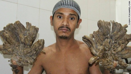 "Abul Bajandra, Bangladesh's so-called ""Tree Man"" is suffering from an extremely rare genetic condition known as Epidermodysplasia Verruciformis."