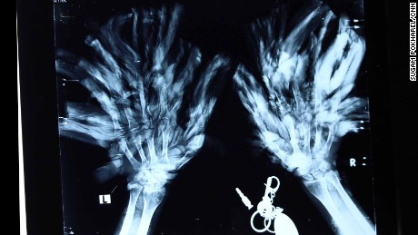 An x-ray image of Bajandra's hands. The president of the Society of Plastic Surgeons in Bangladesh arranged to have him brought to the country's capital and the government will bear the cost of his treatment.