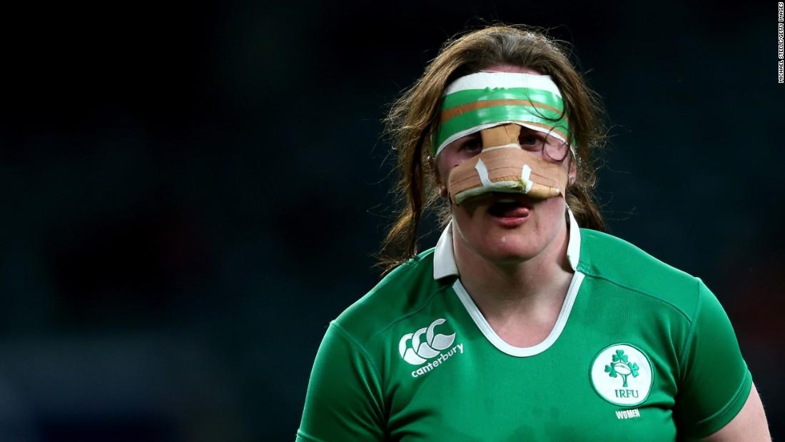 Irish rugby player Ailis Egan wears a protective mask during a Six Nations match against England on Saturday, February 27.