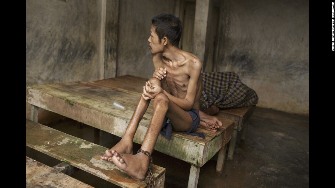 "Before he died, this man lived chained to a platform at Kyai Syamsul's center in Brebes, Central Java. While there, his ankles swelled from constantly being shackled and his body became emaciated, according to<a href=""https://www.hrw.org/node/287537/"" target=""_blank""> new report from Human Rights Watch.</a>"