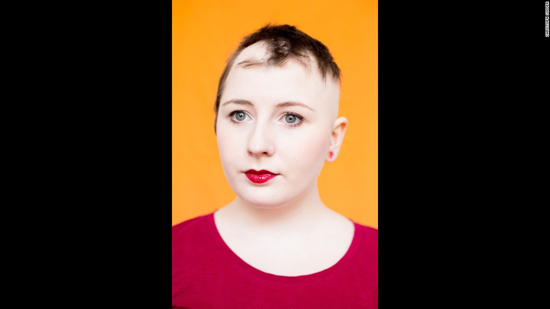 Emily S. is a student studying in York, England. More than 147 million people worldwide have or will develop alopecia areata, according to the National Alopecia Areata Foundation. For some, hair falls out in clumps, then grows back, only to fall out again. Others lose hair from their head, eyelashes and eyebrows.