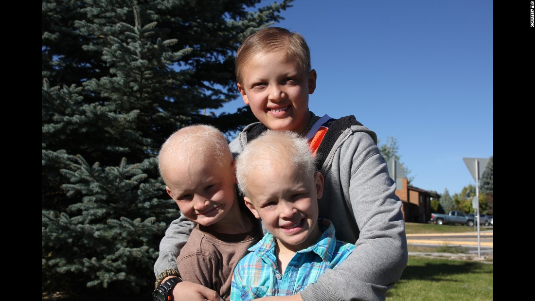 "Joshua, 11, top, met twins Brandon and Andrew, 7, on ""Two in A Million."" <a href=""https://ghr.nlm.nih.gov/condition/hypohidrotic-ectodermal-dysplasia"" target=""_blank"">Hypohidrotic ectodermal dysplasias</a> typically affect the hair, teeth, nails, sweat glands and/or skin, <a href=""http://rarediseases.org/rare-diseases/hypohidrotic-ectodermal-dysplasia/"" target=""_blank"">according to the National Organization for Rare Disorders</a>. It is primarily characterized by partial or complete absence of certain sweat glands, causing lack of or diminished sweating, heat intolerance and fever, abnormally sparse hair, and absence and/or malformation of certain teeth. Many individuals with HED also have characteristic facial abnormalities including a prominent forehead, a sunken nasal bridge (""saddle nose""), unusually thick lips and/or a large chin. The skin on most of the body may be abnormally thin, dry and soft, with an abnormal lack of pigmentation. However, the skin around the eyes may be darkly pigmented and finely wrinkled, appearing prematurely aged."