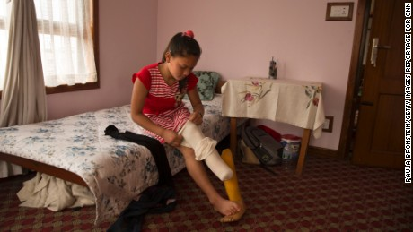 Maya gets ready for school. Because she is still growing, she must periodically be fitted with a new prosthetic.