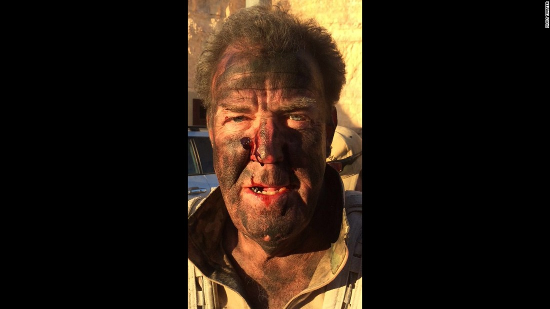 "A bloodied Jeremy Clarkson takes a selfie after filming a stunt for his upcoming TV series on Amazon. ""I survived the day,"" <a href=""https://twitter.com/JeremyClarkson/status/715965127909093376"" target=""_blank"">he tweeted</a> on Friday, April 1. ""Just."""