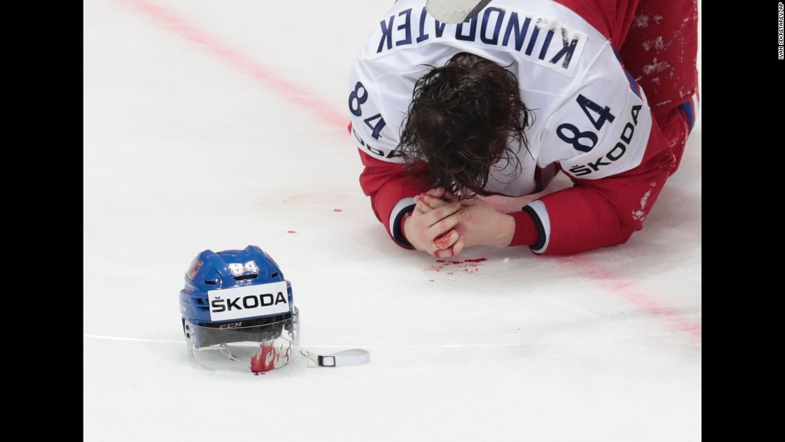 Tomas Kundratek, a Czech defenseman, bleeds onto the ice after being hit in the face against Latvia on Saturday, May 7. He received stitches and was reinserted into the lineup at the World Championships.