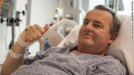 Cancer survivor Thomas Manning, 64, is the first patient to receive a penis transplant in the U.S.