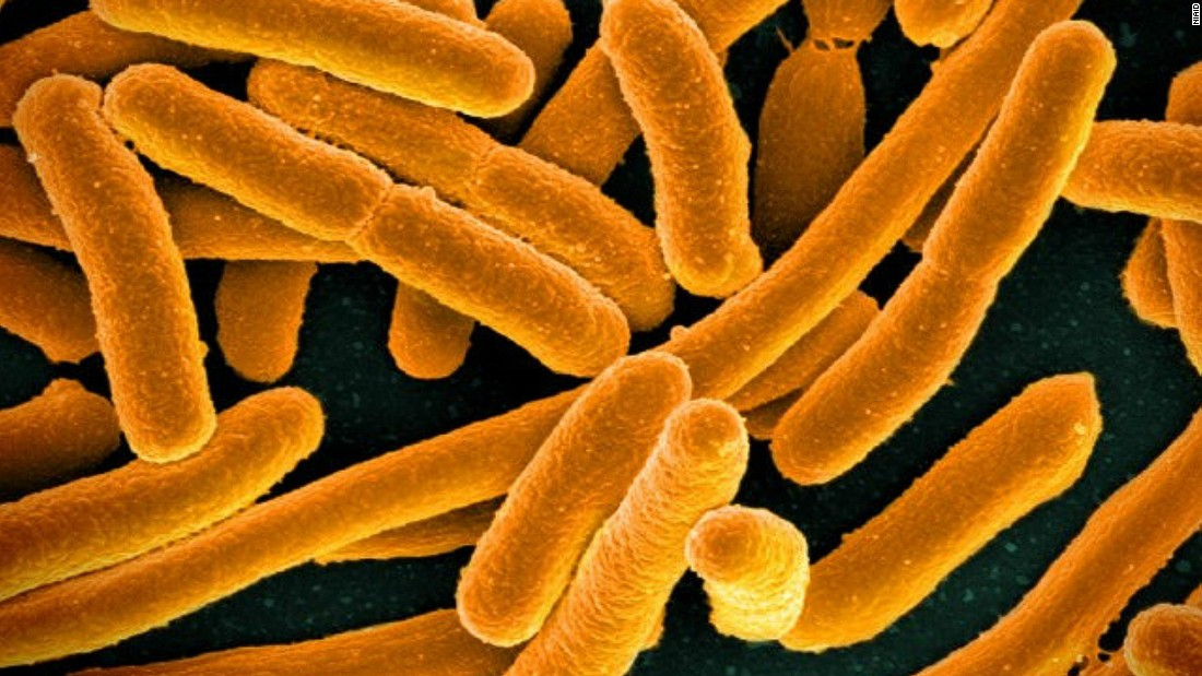 Enterobacteriaceae are a group of bacteria that include E.Coli (pictured). They are also showing significant resistance to the antibiotic carbapenem and are commonly picked up in hospitals. One in 25 hospital patients in the US are estimated to acquire at least one bacterial infection in hospital, according to the US Centers for Disease Control and Prevention.