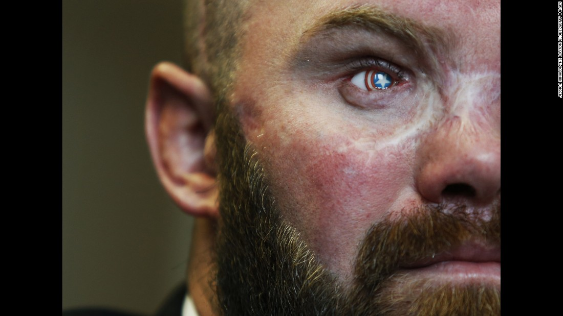 "Retired Army Sgt. Thomas Block lost his right eye in Afghanistan in 2013, but he got a prosthetic that resembles the shield of comic-book hero Captain America. He's also part of <a href=""http://www.cnn.com/2016/02/29/us/freedom-project-hero-corps/"" target=""_blank"">the HERO program</a> where wounded, injured and ill veterans receive training in computer forensics so that they can join federal agents in tracking child predators online."