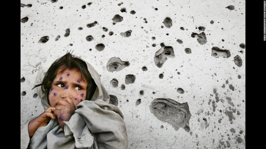 Mahbooba, 7, stands against a bullet-ridden wall waiting to be seen at a health clinic in 2002. She was suffering from a skin disease called leishmaniasis, a parasitic disease transmitted by sand fleas.