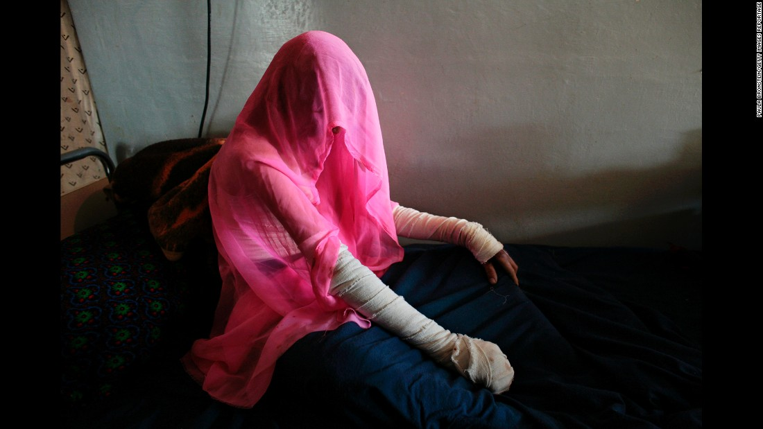 Nazgul, 35, wears a headscarf at a hospital in Herat, Afghanistan, in November 2006. She tried to commit suicide by dousing herself with cooking oil.