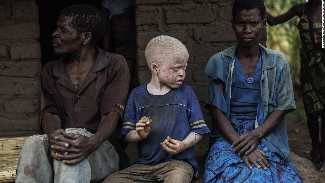 Malawians with albinism -- a genetic condition resulting in little or no pigmentation in the skin, hair and eyes -- are under threat.
