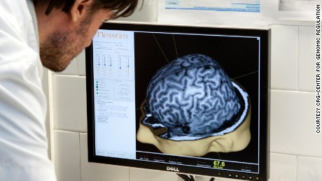 Testing of new Alzheimer's drug disappoints, but it's not all bad news