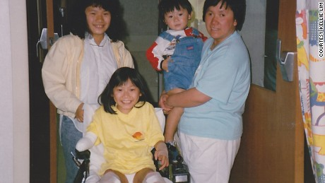 Kellie Lim with her mother, brother and sister after surgery to amputate her legs and right arm.