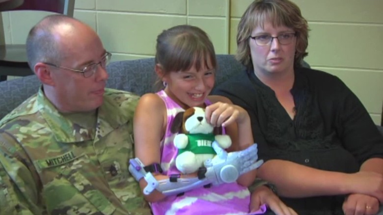 9 year-old girl gets Frozen prosthetic arm