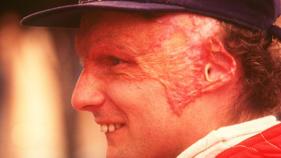 Close to death after inhaling toxic gas and suffering severe burns, Lauda returned to racing just six weeks after the accident -- though he was left with permanent scarring.
