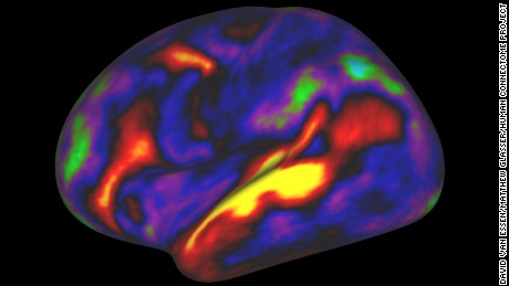 A 180-area multimodal human cortical parcellation on the left and right hemisphere surfaces.