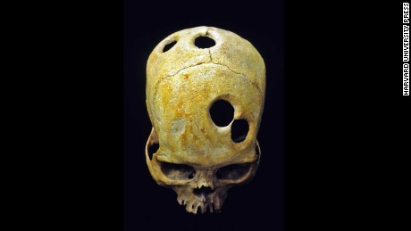 Were mystery holes in skulls an ancient aspirin?