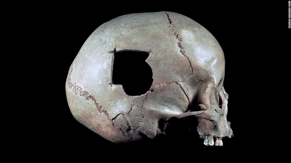 The half-circle broken out of this Peruvian skull was possibly caused by a slingshot stone. A triangular surgical hole extends from the fracture.