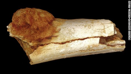 Scientists find cancer in million-year-old fossil