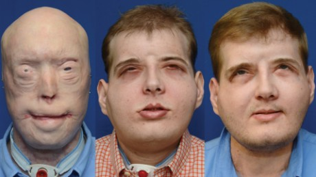 Firefighter's face transplant is making medical history