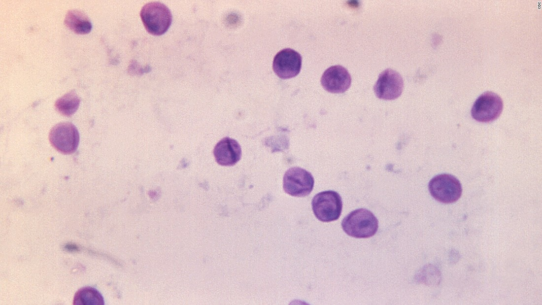 "The fungus <a href=""https://www.cdc.gov/fungal/diseases/pneumocystis-pneumonia/"" target=""_blank""><em>Pnuemocystis jirovecii</a></em> can also cause severe infections, particularly in people with HIV/AIDS. It caused one of the main AIDS-defining illnesses in the United States after the epidemic started in the 1980s."