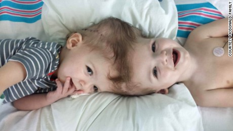 "Nicole McDonald says she and her conjoined twins, Anias and Jadon, are ""in the final lap of this part of the journey."""