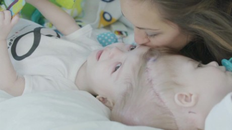 Conjoined twins' parents face gut-wrenching choice