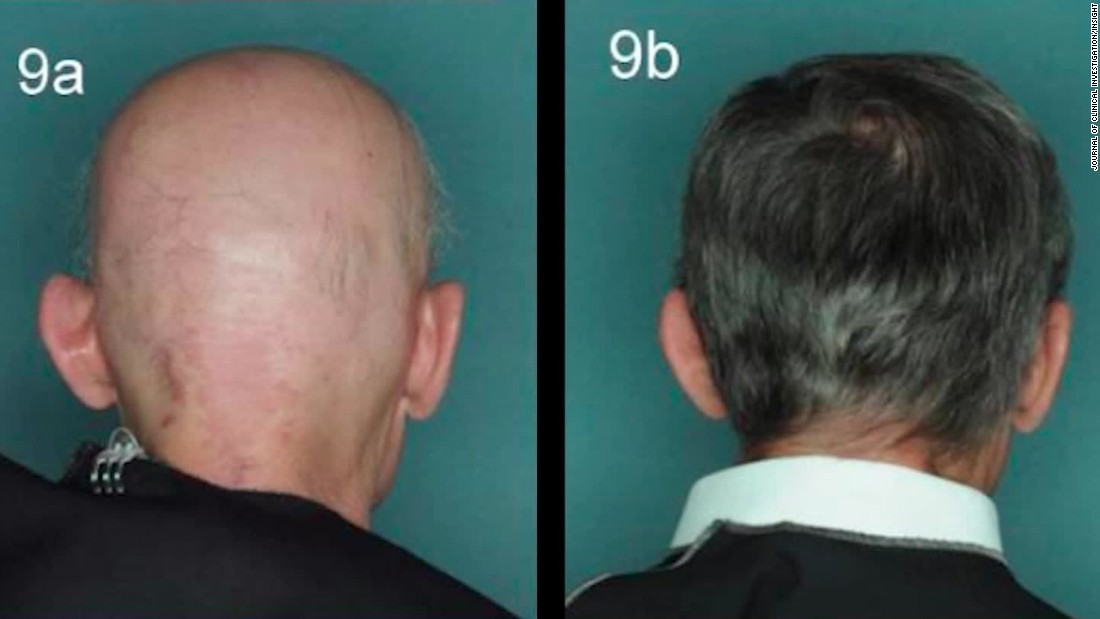 Drug reverses one baldness type; is male pattern next?