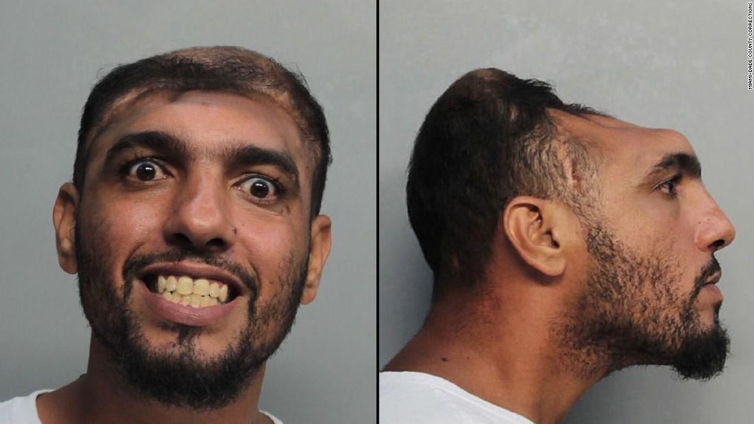 'Half-headed' man arrested -- again