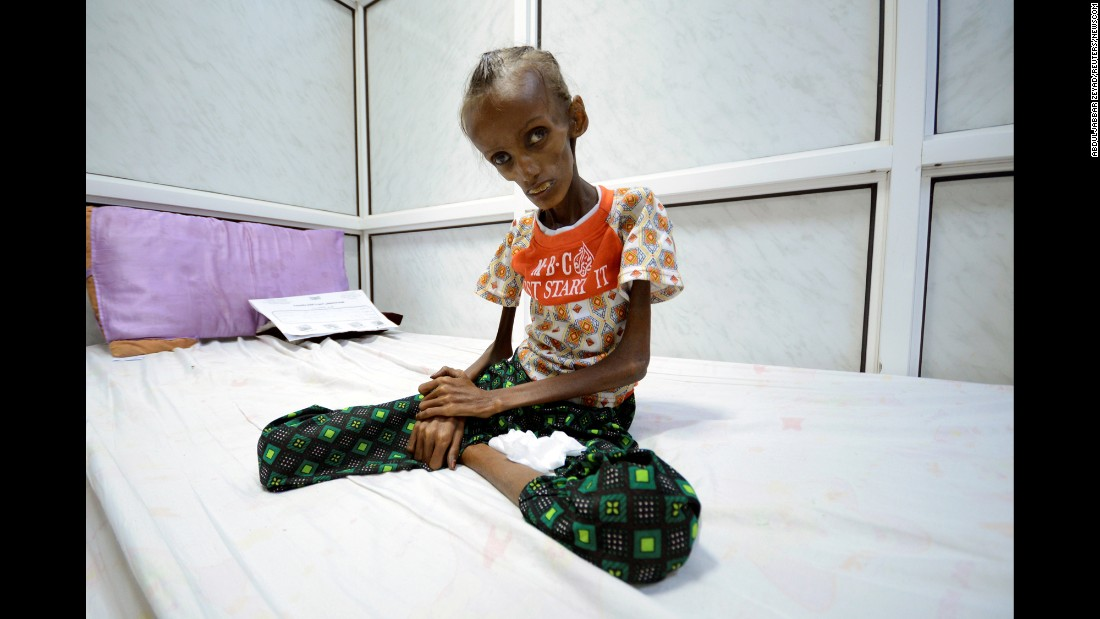 "Saida Ahmad Baghili, an 18-year-old suffering from severe acute malnutrition, sits on a bed at a hospital in Houdieda, Yemen, on Monday, October 24. The war in Yemen has left millions of people at risk of starving, and food rations <a href=""http://www.cnn.com/2016/10/27/middleeast/yemen-world-food-program/index.html"" target=""_blank"">are starting to run out.</a>"