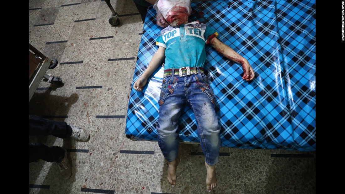 <strong>October 24:</strong> A child's body is seen at a makeshift hospital after a cluster bomb attack in Douma, Syria.
