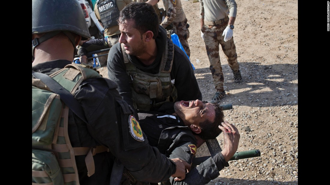 "An Iraqi special forces soldier is treated for injuries in Gogjali, on the eastern edges of Mosul, Iraq, on Sunday, November 6. Around 100,000 Iraqi-led forces have been in a decisive push toward Mosul since October 17 in the hopes of retaking the city from ISIS. <a href=""http://www.cnn.com/2016/10/17/world/gallery/mosul/"" target=""_blank"">Mosul operation: Iraqi-led forces push toward key city</a>"