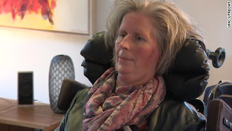 Brain implant helps woman with ALS communicate