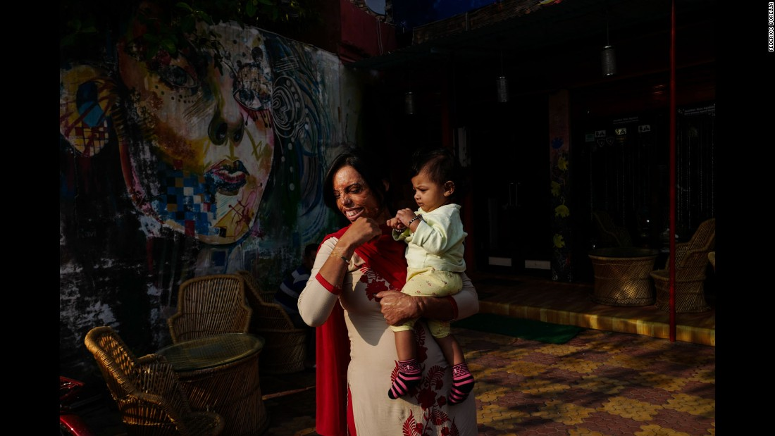Sonyia, an activist from New Delhi, holds a child at the Sheroes Hangout Cafe in Agra, India. The cafe is staffed by acid attack survivors.