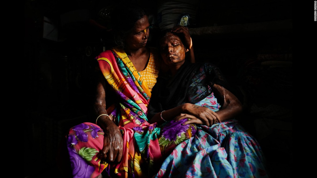 Gita holds her blind daughter, Nitu, for a portrait. Gita's other daughter, Krishna, was killed in the acid attack.