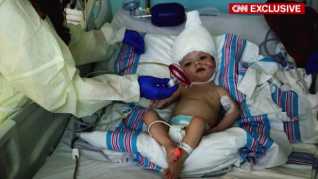 Separated twins 'ahead of schedule'