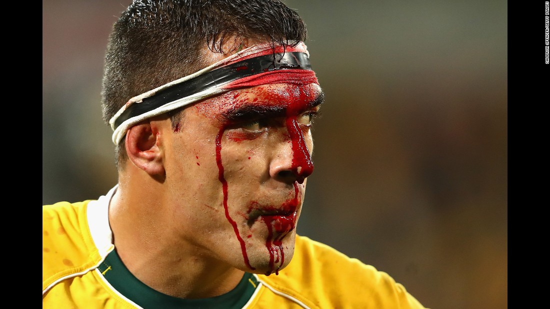 Australian rugby player Rory Arnold bleeds from his head Saturday, June 18, during a Test match against England in Melbourne.