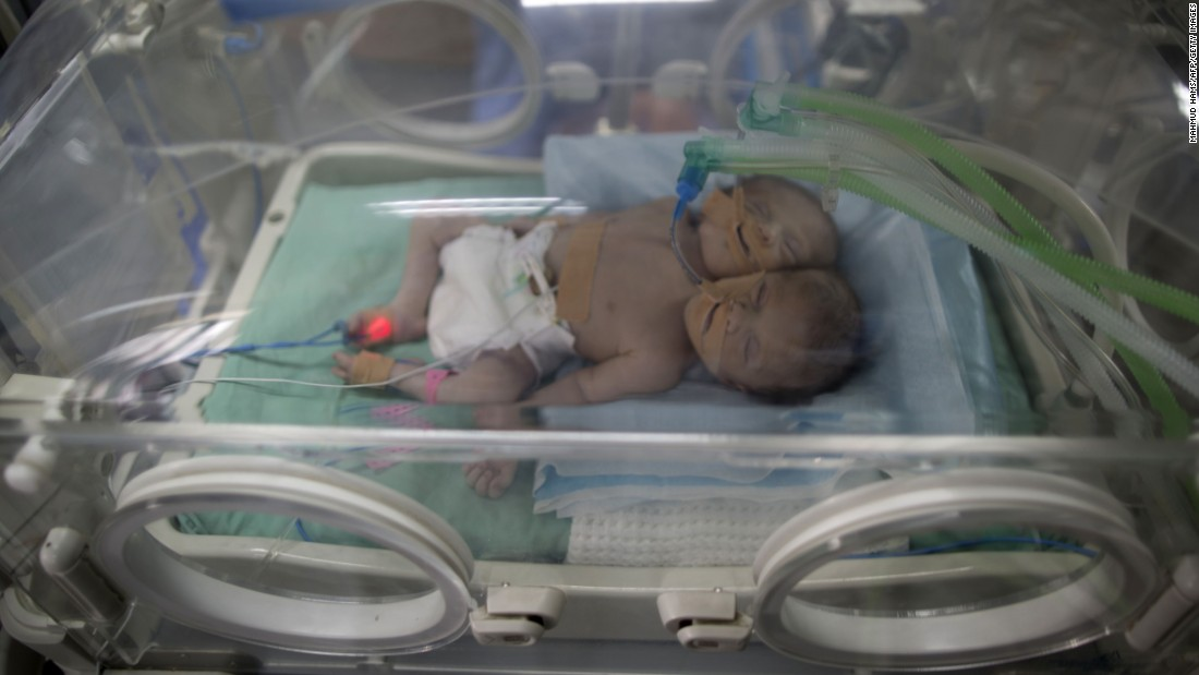 Conjoined twins, just 1 day old, lie in an incubator at a Gaza City hospital on Wednesday, November 23.