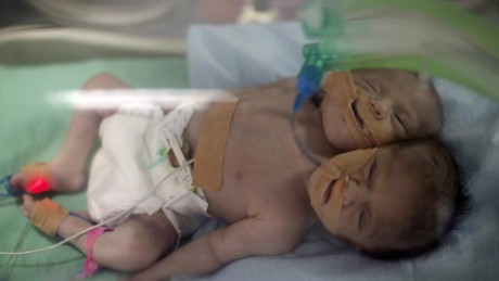 conjoined twins gaza orig_00000000