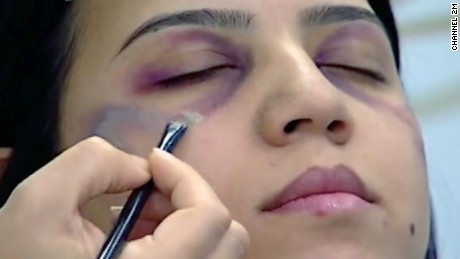 The makeup artist showed how to cover  facial bruising with concealer.
