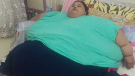 'Living bombshell': World's heaviest woman flies to India to fight for her life