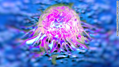 Prostate cancer cells. Researchers in Australia say that they have developed a new test for cancer that can provide an accurate detection in 10 minutes
