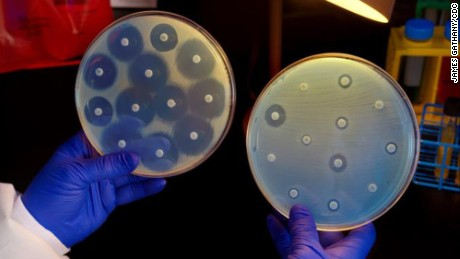 Drug-resistant superbug may be more widespread than previously known